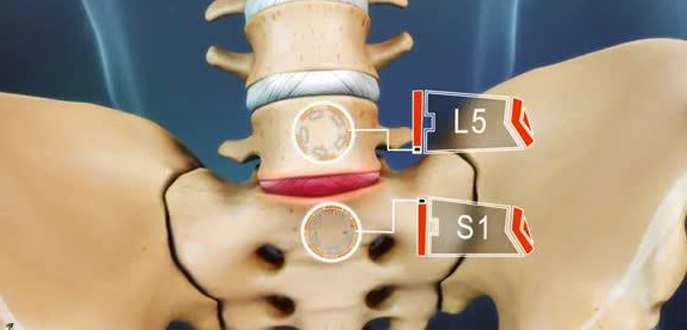 what is minimal retrolisthesis Minimal retrolisthesis of c5 on c6  click to continue essay about education for ielts can you pay someone to write an essay introduction format three.